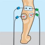 prevenir rampas o calambres en piernas con electroestimulación