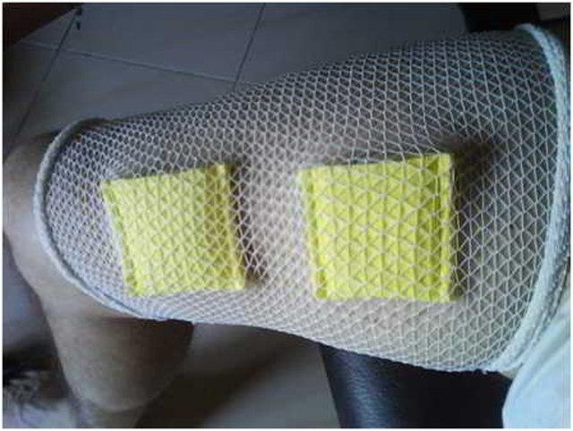 fabricacion electrodos o parches de electroestimulacion caseros