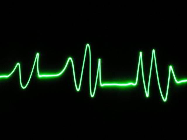 Mi pulso no sube, Fuente imagen sxc.hu